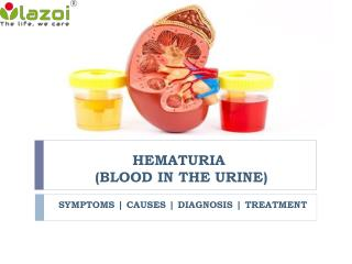 Hematuria (Blood in the urine): Symptoms, causes, diagnosis and treatment
