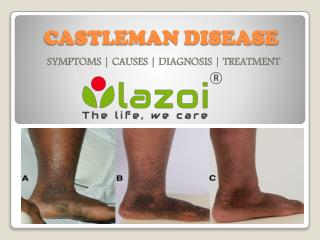 Castleman Disease : Symptoms, causes, diagnosis and treatment