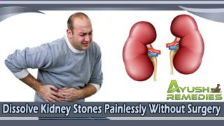 Dissolve Kidney Stones Painlessly Without Surgery