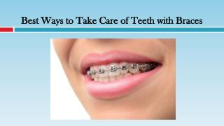 Best Ways to Take Care of Teeth with Braces