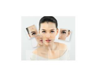 Vitiligo Causas Vitilago, Fototerapia Vitiligo, Enfermedad De La Piel Vitiligo, Vitigilo