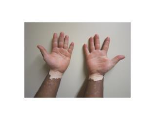 Vitiligio Manchas En La Piel, Vilitigo, Remedio Para Vitiligo, Remedios Para La Piel, Vitiligio Piel