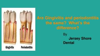 Are Gingivitis and Periodontitis the same? What's the difference?