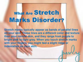 Laser Stretch Marks Removal Treatment | Stretch Mark Therapy