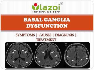 Basal ganglia disease : causes, symptoms, treatment and diagnosis
