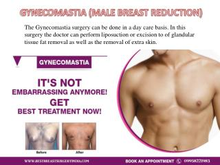 Male Breast Reduction : Gynecomastia Surgery in Delhi, INDIA