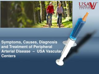 Symptoms and Treatment of PAD – USA Vascular Centers