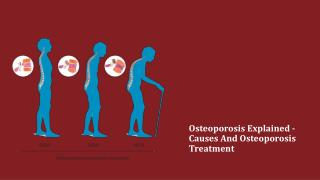Osteoporosis Explained - Causes And Osteoporosis Treatment