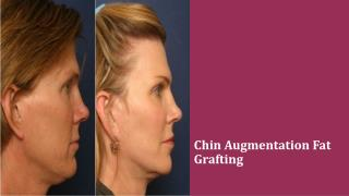 Chin Augmentation Fat Grafting