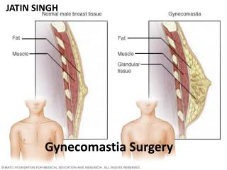 History,Advantages and Disadvantages of Gynecomastia Surgery