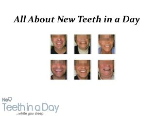 New Teeth in a Day Ottawa | All on Four, Dental Implant Clinic Ottawa