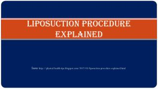 Liposuction Procedure Explained