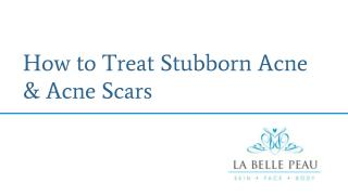 How to Treat Stubborn Acne & Acne Scars  - La Belle Peau