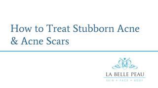 How to Treat Stubborn Acne & Acne Scars  - La Belle Peau