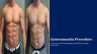 Gynecomastia Procedure