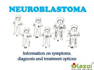 Neuroblastoma: symptoms, diagnosis and treatment options