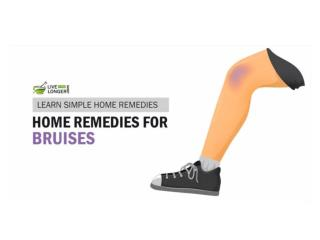 Best Home Remedies For Brusies