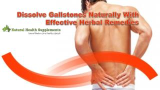 Dissolve Gallstones Naturally With Effective Herbal Remedies