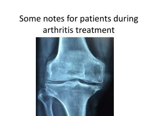 Some notes for patients during arthritis treatment