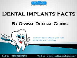Dental Implant facts by Oswal Dental clinic Pune