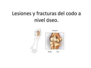 Lesiones y fracturas del codo a nivel  seo.