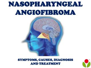 Nasopharyngeal Angiofibroma: Symptoms, causes, diagnosis and treatment