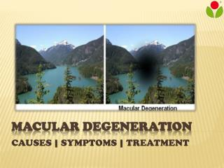 Macular Degeneration : causes, symptoms and treatment