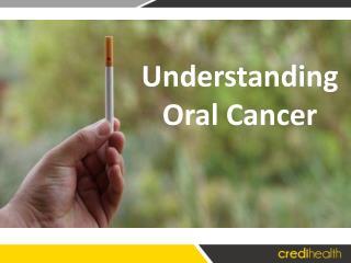 Understanding Oral Cancer