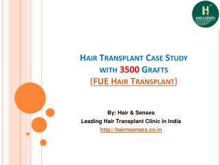 Hair Transplant Case Study With 3500 Grafts
