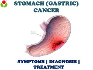 Stomach (Gastric) Cancer: Overview of symptoms, diagnosis and treatment