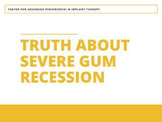 Truth about Severe Gum Recession