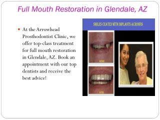 Full Mouth Restoration in Peoria, AZ