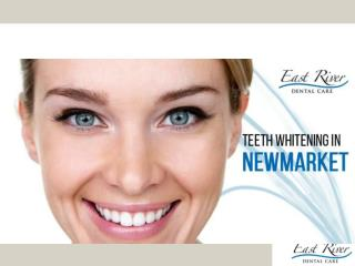 Teeth Whitening in Newmarket - East River Dental Care - Ontario - Canada