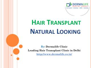 Best Hair Transplant Center in Delhi|Hair transplant doctor|Hair Transplant Clinic in South Delhi