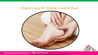 3 Simple steps for healing Cracked Heels