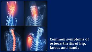 Common symptoms of osteoarthritis of hip, knees and hands
