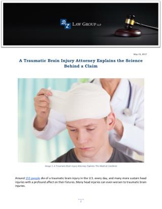 A Traumatic Brain Injury Attorney Explains the Science Behind a Claim