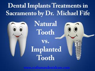 Dental Implants Sacramento California by our Implant Dentist Dr. Fife