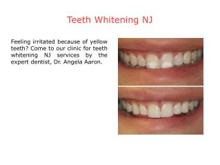 Teeth Whitening NJ