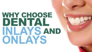 Why Choose Dental Inlays and Onlays