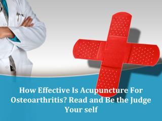 Acupuncture Needles Online India