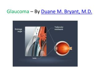 Glaucoma – By Duane M. Bryant, M.D.