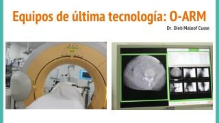 Equipos de Última Tecnología: O-ARM - Dieb Maloof