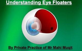 Understanding eye floaters