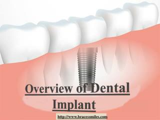 Overview of Dental Implant by Braces & Smiles Orthodontic and Dental Care Dentist in Pune