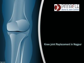 Knee Joint Replacement in Nagpur