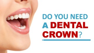 Do You Need a Dental Crown