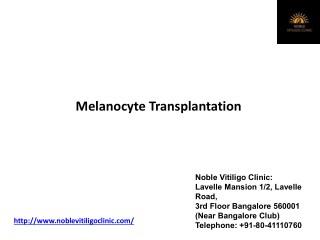 Melanocyte transplant for vitiligo