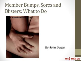 Member Bumps, Sores and Blisters: What to Do