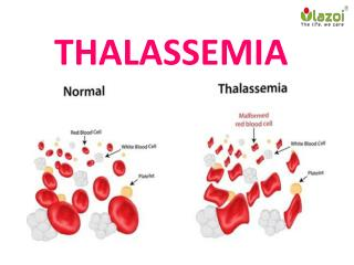 Thalessemia : Overview, Symptoms, complications, Risk factor,   Causes, Daignosis and Treatment